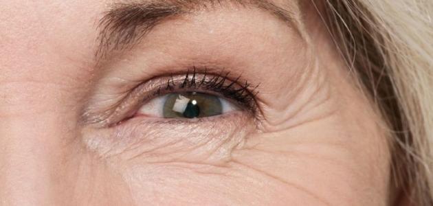 صورة ازالة تجاعيد العين , كيف ازيل التجاعيد حول العين