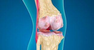 صورة علاج غضروف الركبة , ما هو غضروف الركبة