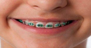 صورة تفسير حلم تقويم الاسنان , رؤية تقويم الاسنان في منامك