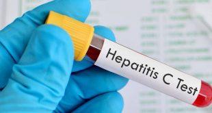 صورة ما هو فيروس سي , ماهو مرض التهاب الكبد