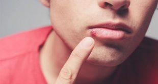 اعراض الايدز الاولية بالتفصيل