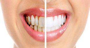 ازالة التسوس من الاسنان